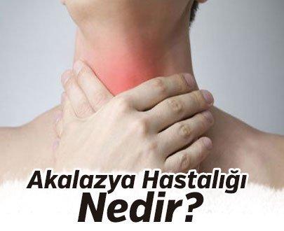 Akalazya Hastalığı Nedir?