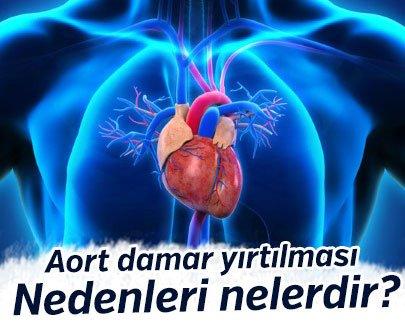 Aort damar yırtılması nedenleri nelerdir