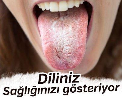 Diliniz Sağlığınızı Göstermede Etken