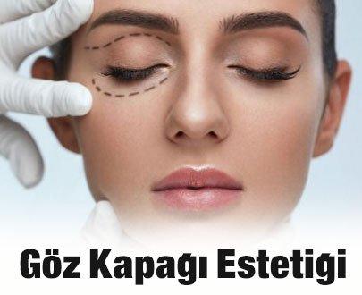 Göz Kapağı Estetiği Ameliyatı Nedir?