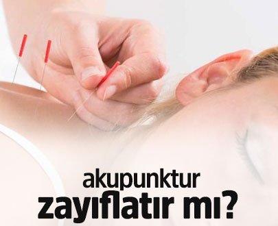 Akupuntur Nedir? Akupunktur zayıflatır mı?